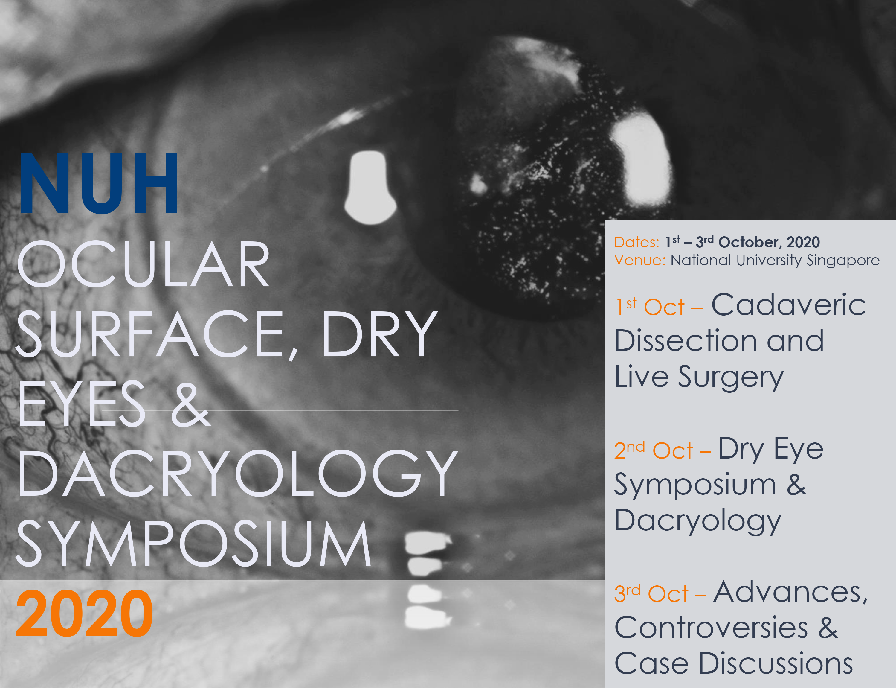 NUH- Ocular Surface, Dry Eye & Dacrynology Symposium 2020
